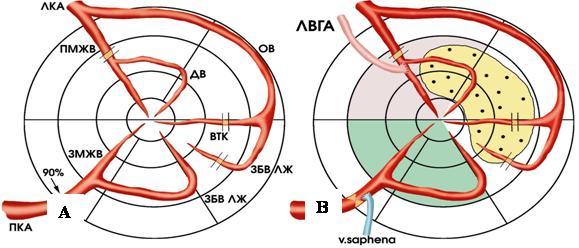 Трансмиокардиальная лазерная реваскуляризация в сочетании с методами прямой реваскуляризации у больных с ишемической болезнью сердца