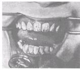 Развитие зубов у детей