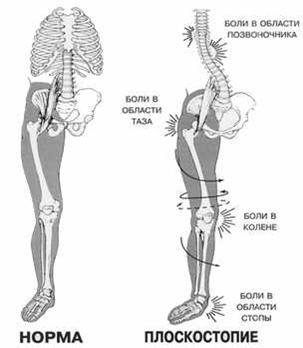 Взаимосвязь нарушения осанки в следствии плоскостопия