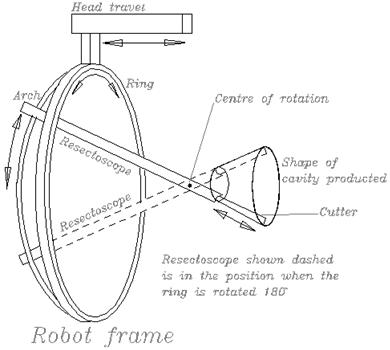 Применение робототехники в хирургии. Преимущества и недостатки системы Да Винчи