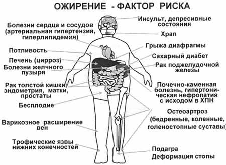Психологические особенности людей, страдающих алиментарно-конституциональным ожирением