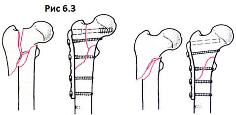 Закрытый оскольчатый чрезвертельный варусный перелом левого бедра со смещением под углом