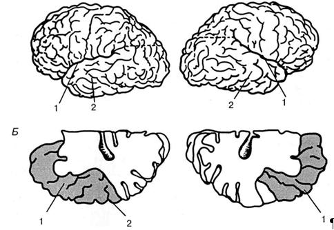 Особливості кореляційних зв'язків слухових ВП кори головного мозку при фізичній та когнітивній стимуляції