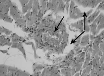 Патоморфологические изменения в органах крыс при моделировании реперфузионного синдрома