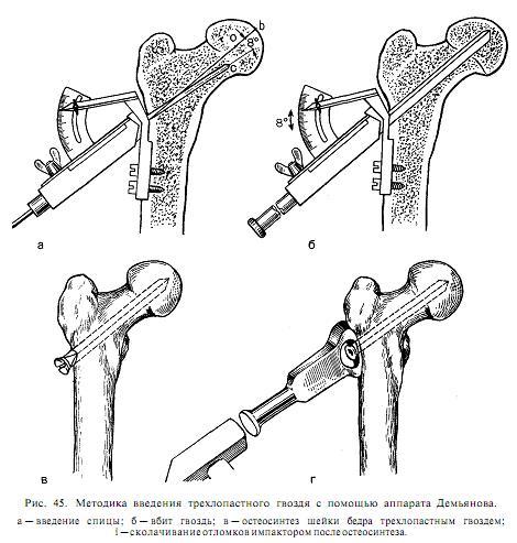 Изолированная травма бедра, закрытый медиальный чрезшеечный варусный перелом правого бедра