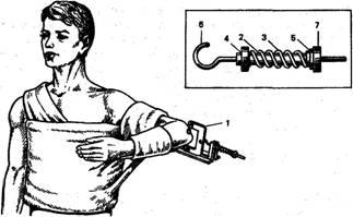 Міжвиростковий перелом правої плечової кістки